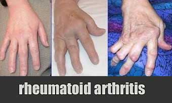 What's the Difference Between Osteoarthritis and ...