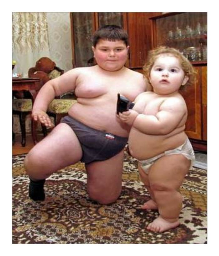Fat babies with extreme obesity in diapers