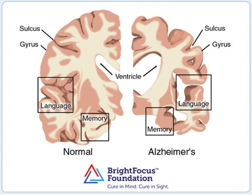 oxysterols-alzheimer's