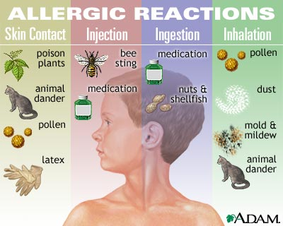 allergies Kids, Allergies & Vitamin D