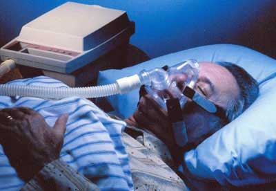 sleep apnea cpap Sleep Apnea: Symptoms, Types and Treatment Methods