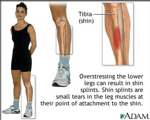 Could your shoes be causing your shin splints?