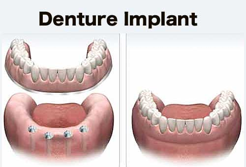 denture implant A Guide to Denture Implants   Implant Retained Dentures