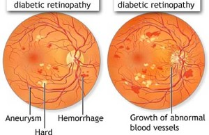 Changes in retina in diabetics - Diabetic Retinopathy