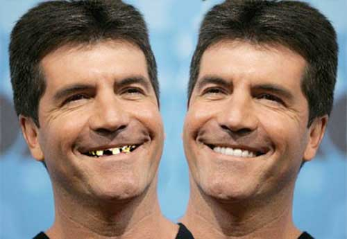 simon cowell bad teeth Eat Your Way to Whiter Teeth
