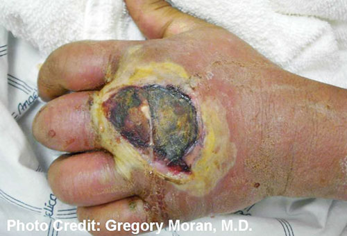 Gregory Moran,M.D., MRSA Photo