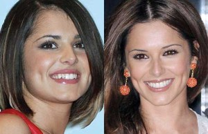 Cheryl Cole before and after cosmetic dentistry