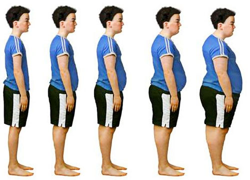 child hood obesity The latest data show that the national childhood obesity rate among 2- to 19-year -olds is 185 percent the rate varies among different age groups, with rates.