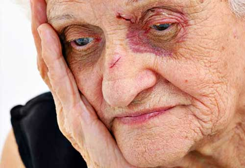 nursing home abuse Nursing Home Abuse to Grow in the Future?
