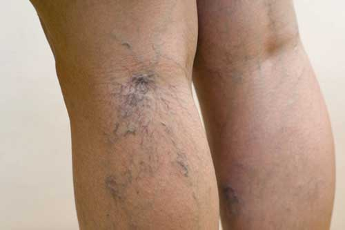 spider veins legs Creepy Crawlers, When Spider Veins Come Crawling Down Your Skin
