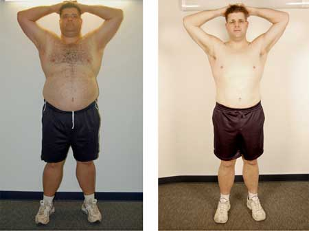100 lb weight loss before and after How Losing Weight Can Change Your Life