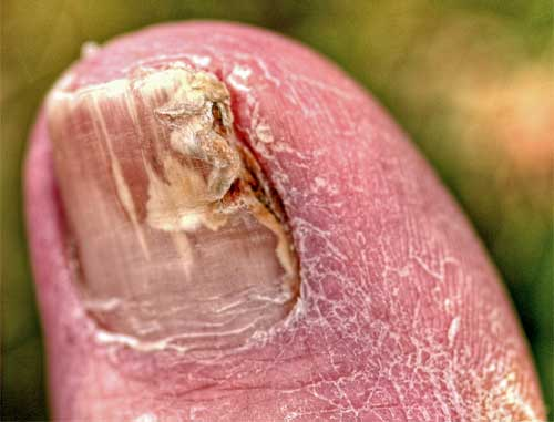 fingernail fingal infection