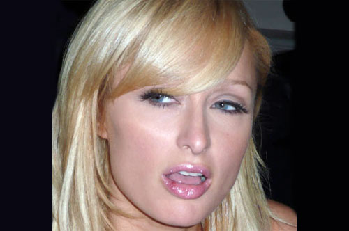 paris hilton cold sore Natural Remedies to Treat Cold Sores