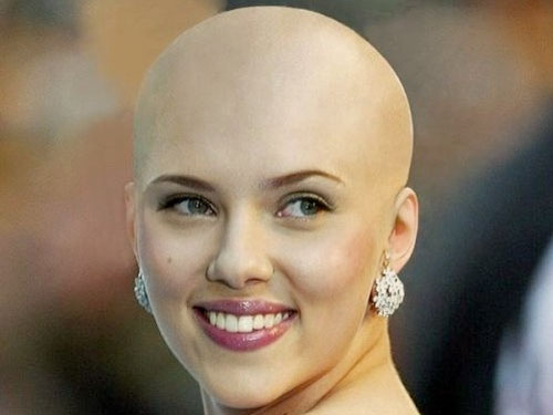 Causes of Hair Loss in Adults and Children Scarlett Johansson Disease