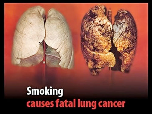 smoking lung cancer The Sunshine State Is not for Big Tobacco
