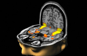 brain mri flipped open