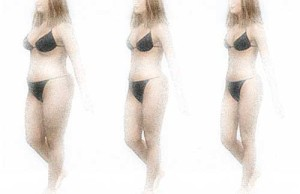 Woman in bikini - 3 stages of weight loss