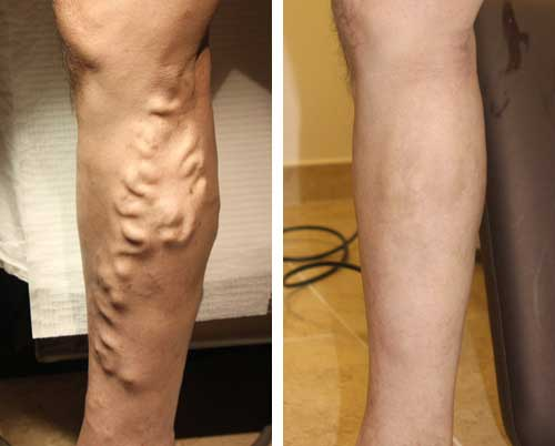 Why Do Varicose Veins Occur During Pregnancy?