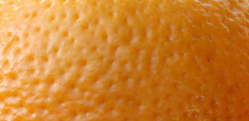 orange-peel-cellulite
