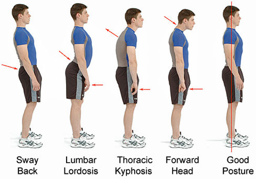 what are the long term effects of bad posture