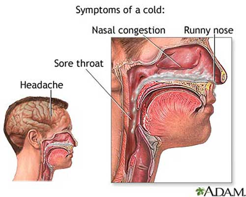 common cold Do I Have a Cold or a Sinus Infection?