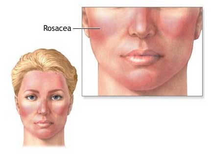 rosacea IPL Treatment Reduces Rosacea Dramatically