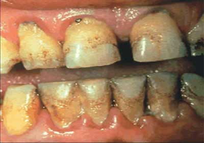 tobacco teeth 5 Tips to Improve Your Dental Health