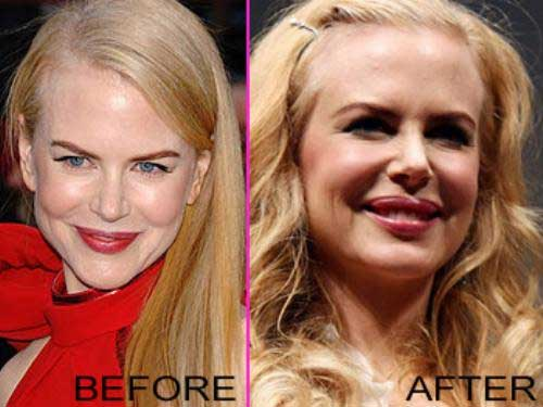 Nicole Kidman - before and after Botox