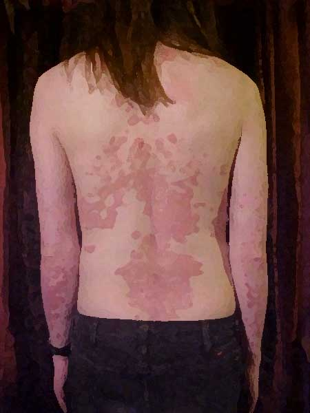 psoriasis What to Do When Your Teen Has Psoriasis?