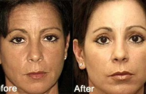 Botox Review - Before and After