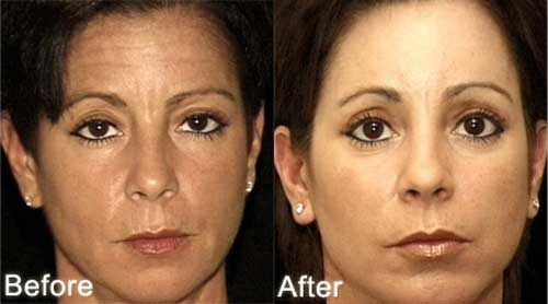 Botox Wrinkle Treatment Review Before And After