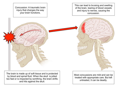 How to Avoid Football Related Brain Injuries pictures
