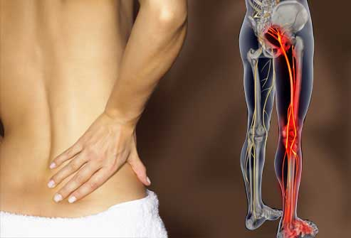sciatica Ice Massage   Sciatica Treatment