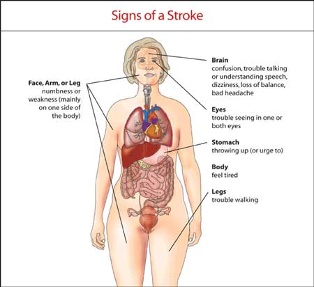 stroke---signs-of