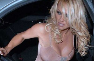 Celebrity with Hepatitis C - Pamella Anderson