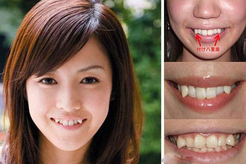 yaeba teeth japan The 6 Biggest Trends in Dentistry
