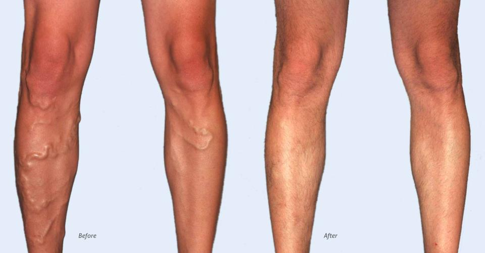 varicose vein treatment denver