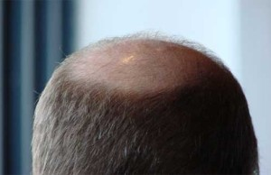 Bald Man's Head